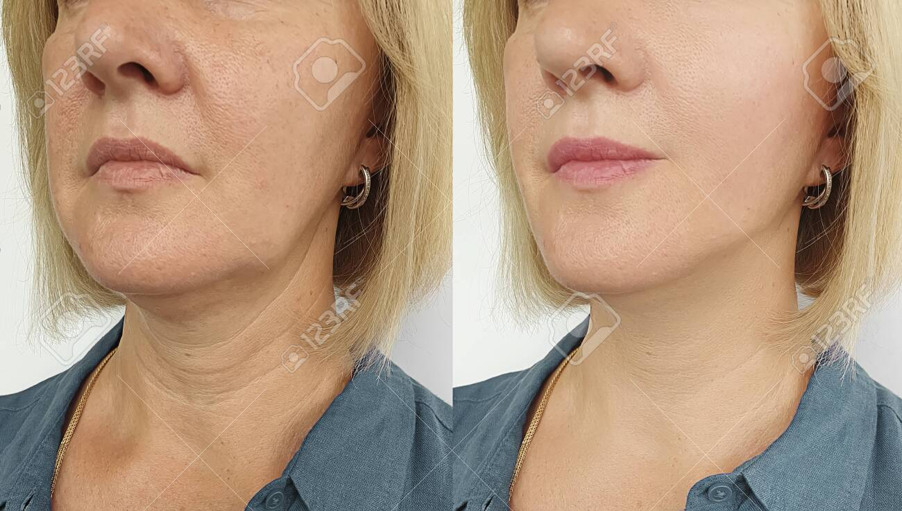 woman face wrinkles before and after treatment - 128978934