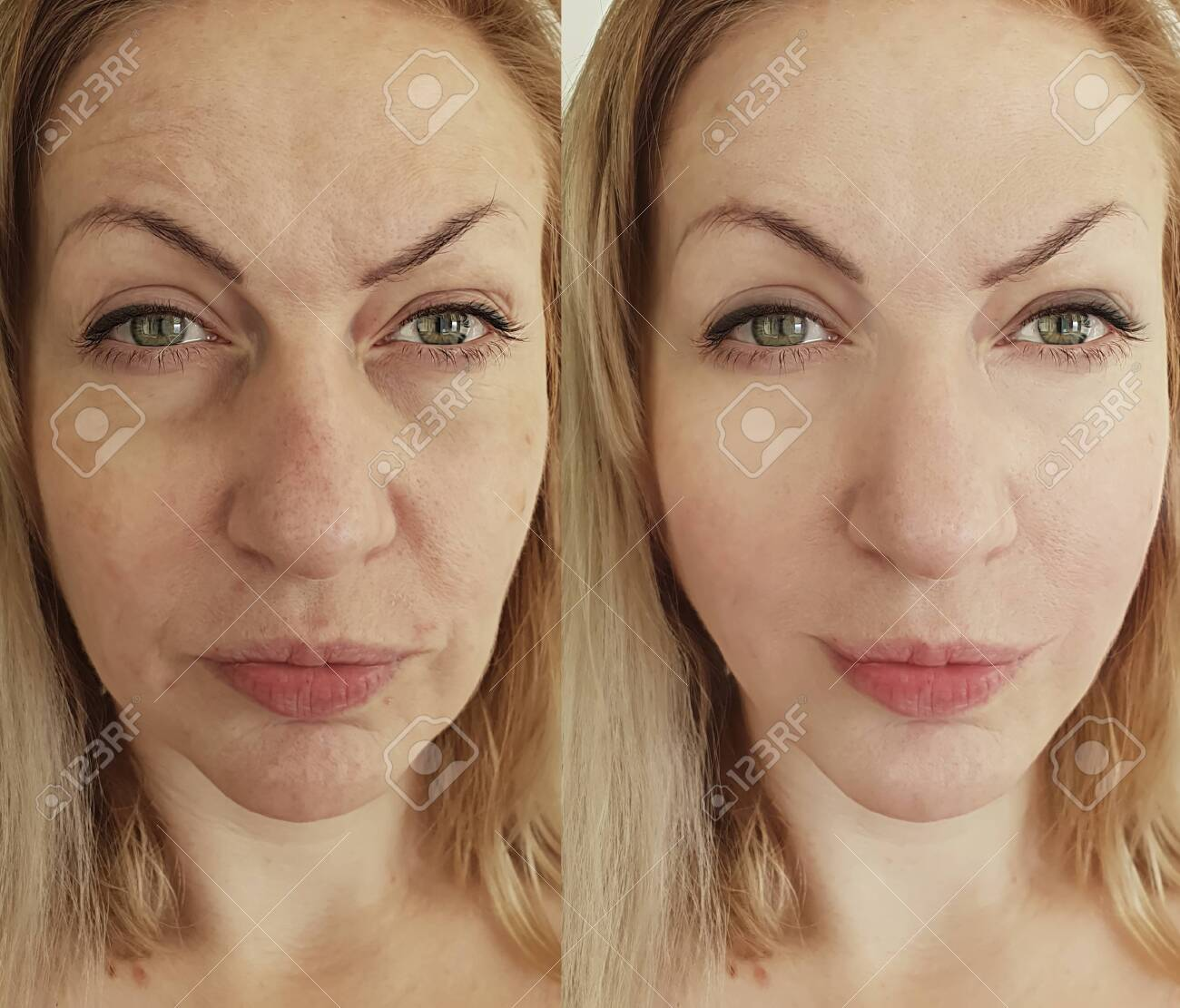 woman face wrinkles before and after treatment - 147588387