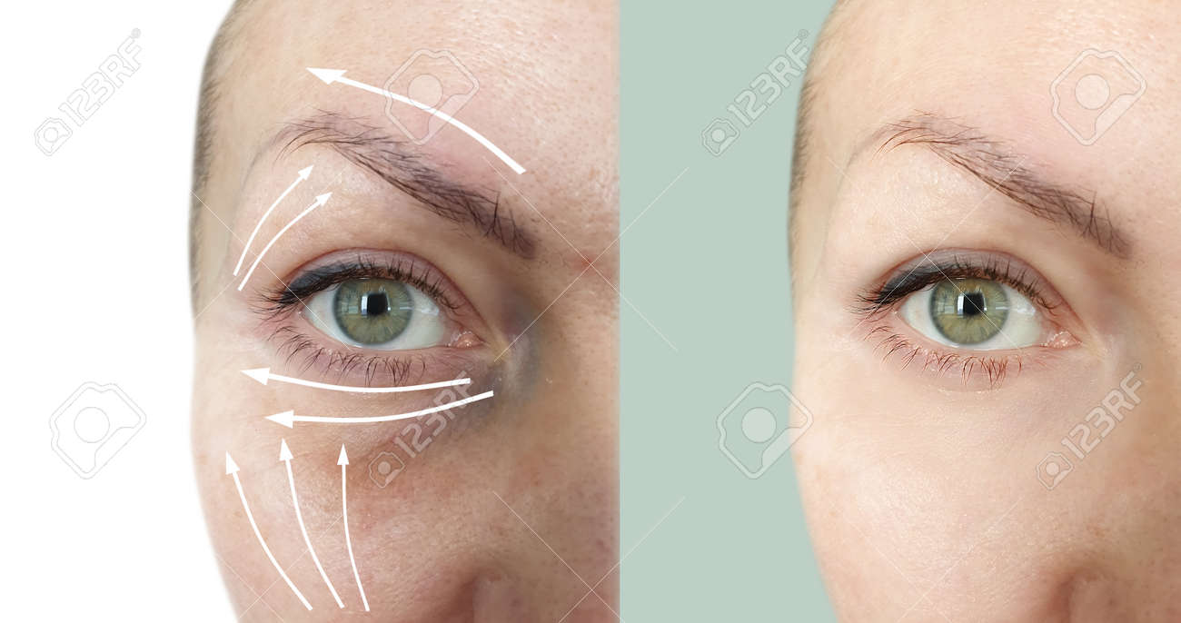 woman face wrinkles before and after treatment - 167157189