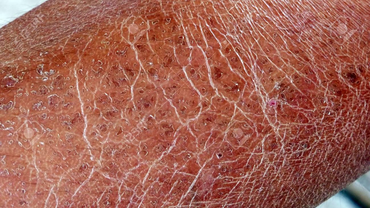 dry rough skin