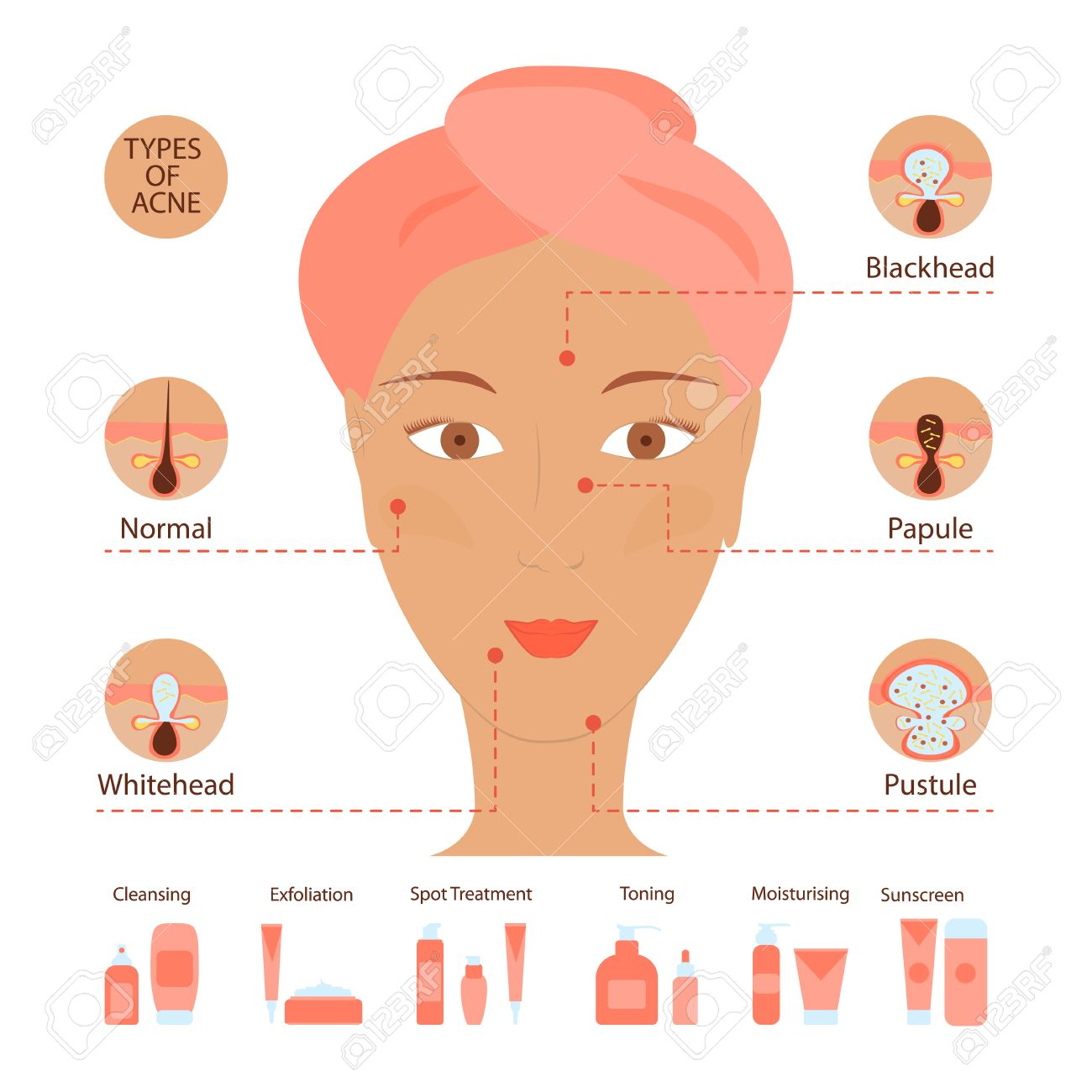 Types of acne pimples human skin poster  Facial treatments infographic