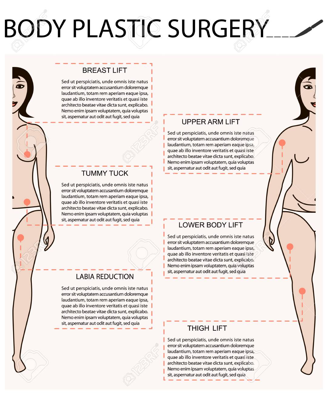 Body woman correction, cellulite fat, plastic surgery infographics