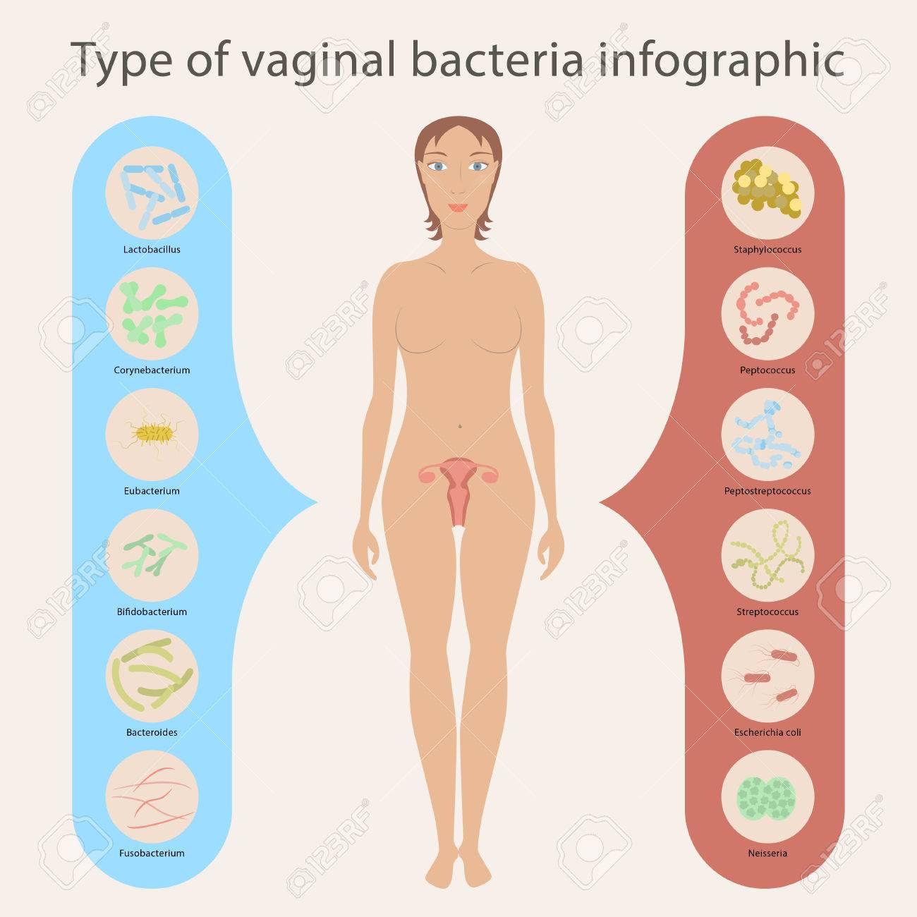 Gynécologie Vector illustration. flore vaginale de femme ou microbiote dans  le vagin, les bactéries bonnes et les mauvaises