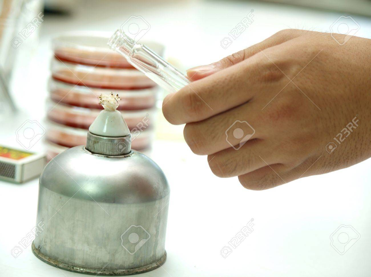 alcohol lamp for sterile technique in microbiology lab Stock Photo - 19164731