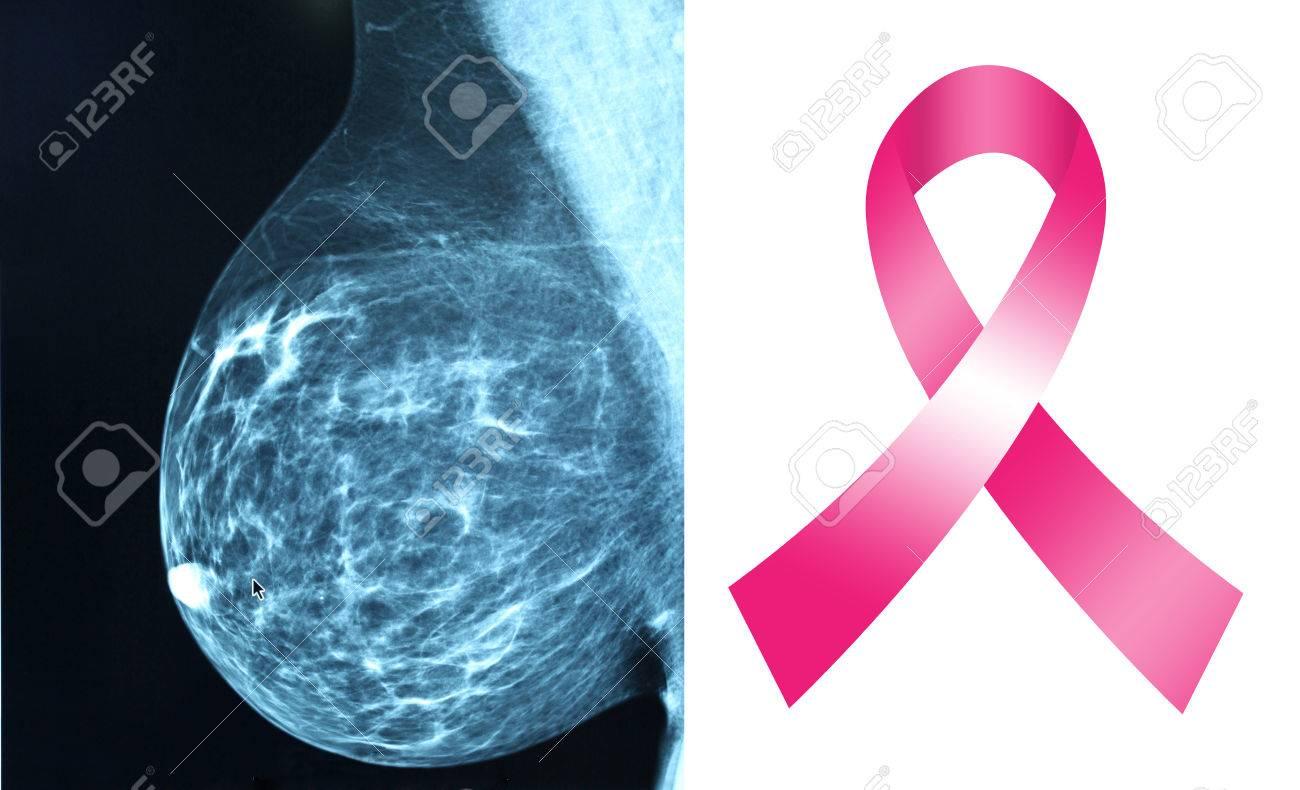 Sfondo Cancro
