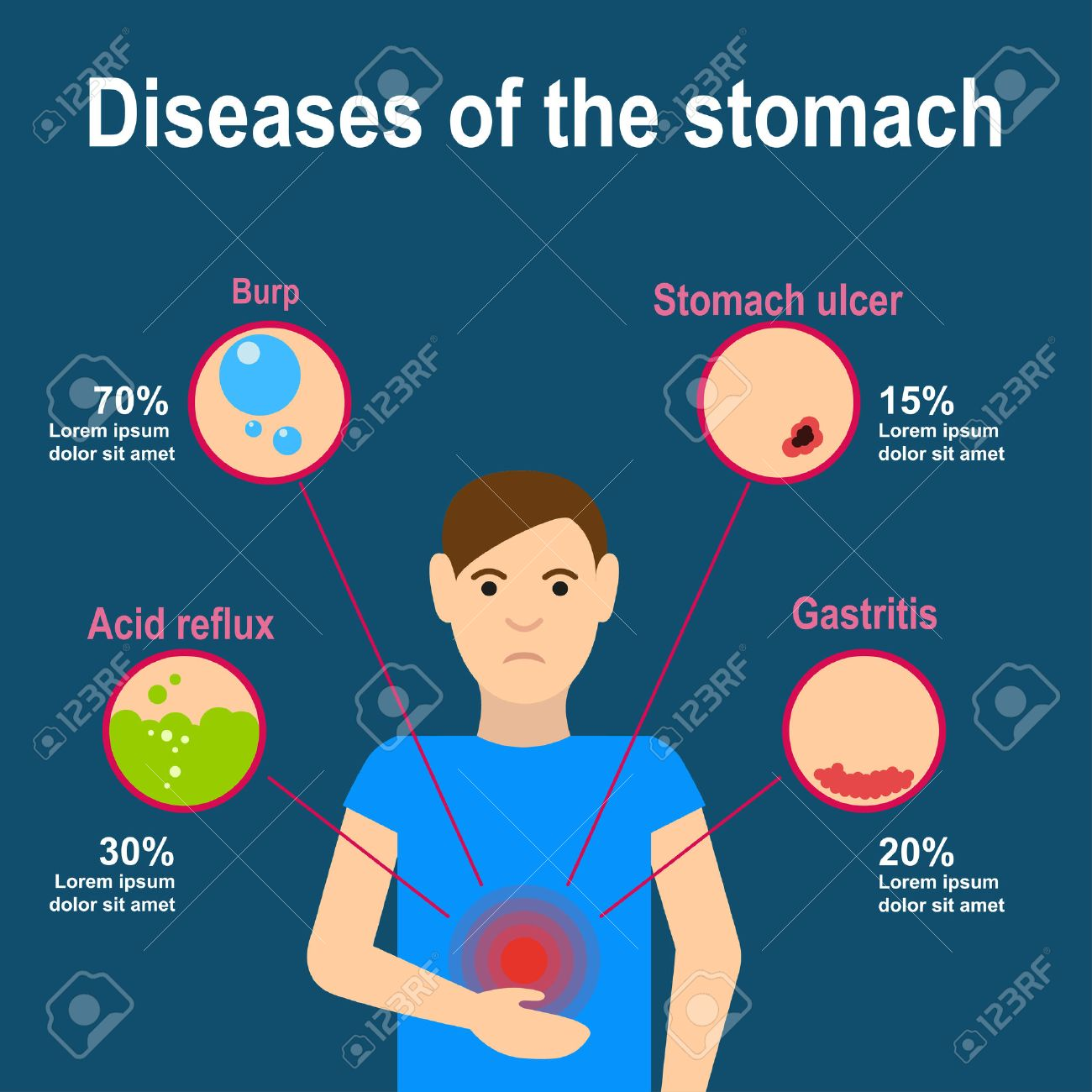 Causes of stomach pain burp heartburn gastritis and stomach causes of stomach pain burp heartburn gastritis and stomach ulcers flat design ccuart Image collections