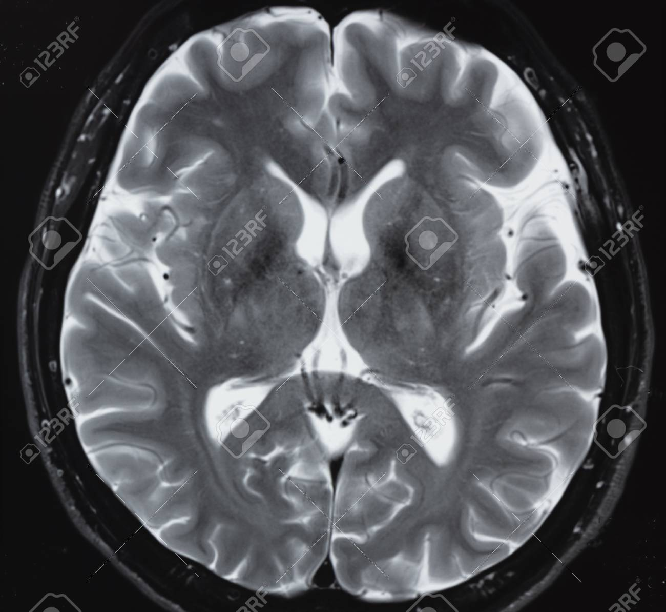 Magnetic Resonance Imaging In T2 Study Of Normal Human Brain.. Stock ...