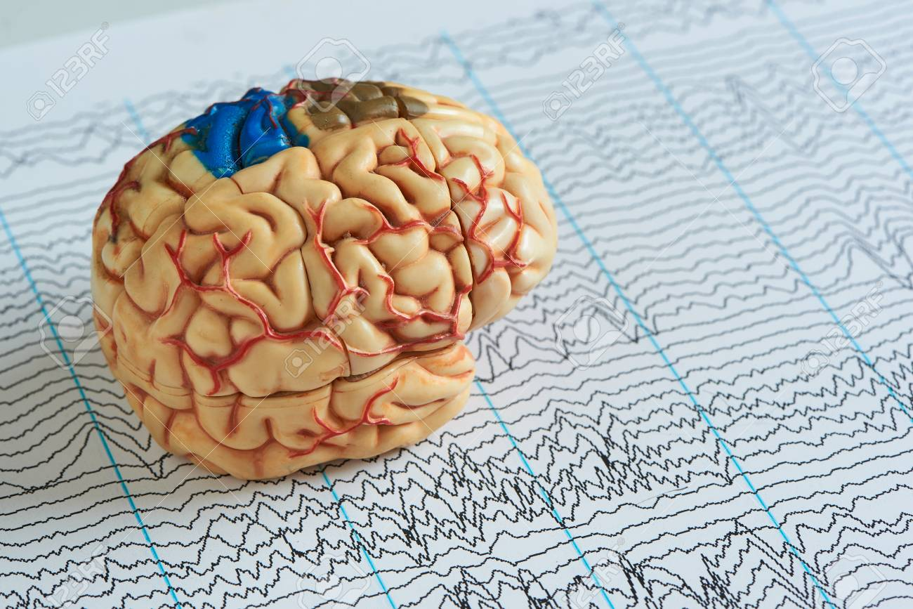 Artificial human brain model on paper of EEG waves background - 106742299