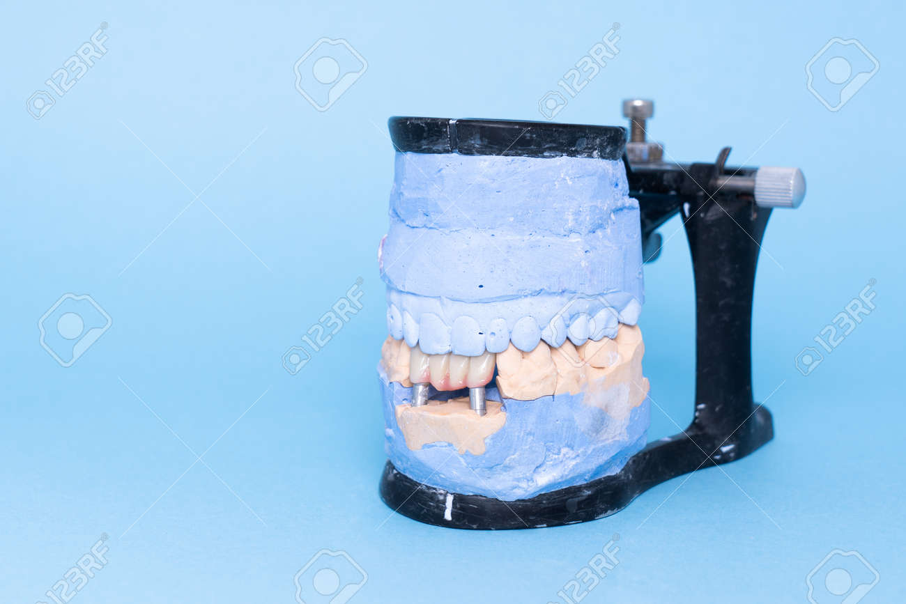 Veneers and crowns on gypsum dental artificial jaw on blue background. Upper and lower jaws plaster model with prepared teeth on diagnostic model. Concept of aesthetic dentistry. restoration of teeth. Close-up view of dental jaws prosthesis - 172300622