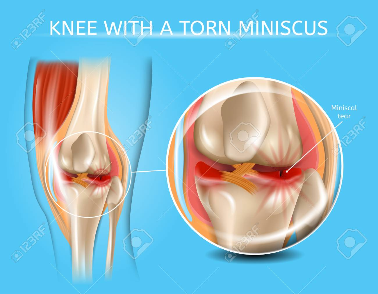 Knee with Torn Meniscus Realistic Vector Medical Scheme with Damaged Knee Joint and Magnified Painful Meniscus Tear Anatomical Illustration. Musculoskeletal System and Joints Injuries, Meniscus Trauma - 112254008
