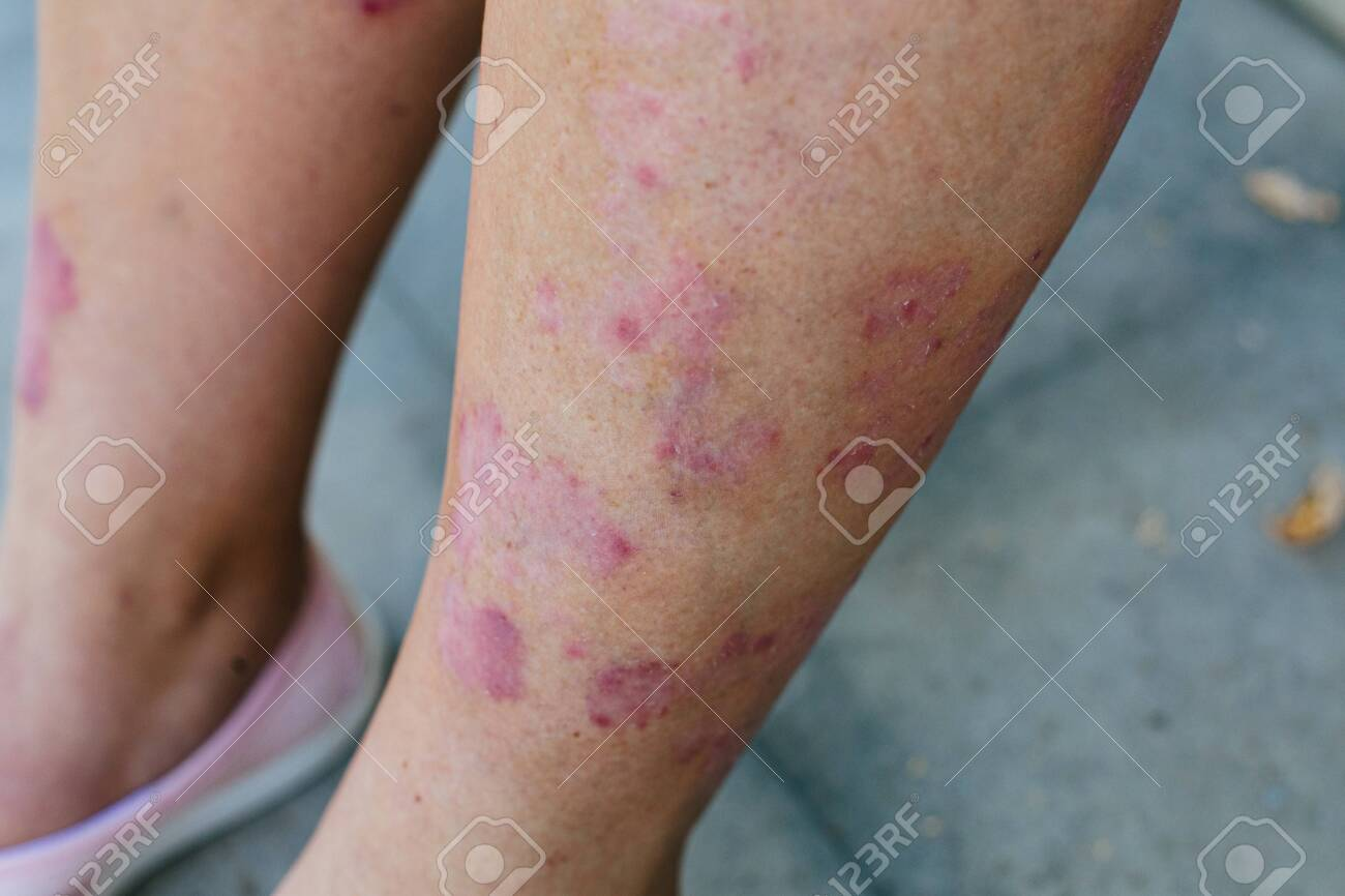 Closeup of the legs of a woman suffering from chronic psoriasis. Closeup of rash and scaling on the patients skin. Dermatological problems. Dry skin. - 154095784