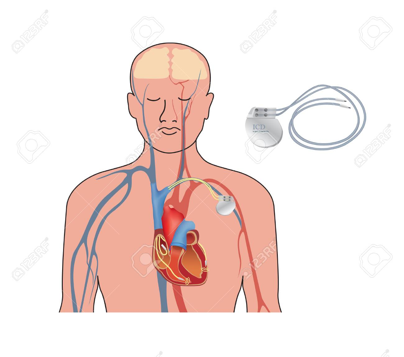 Heart pacemaker. Human heart anatomy cross section with working implantable cardioverter defibrillator. - 103271783
