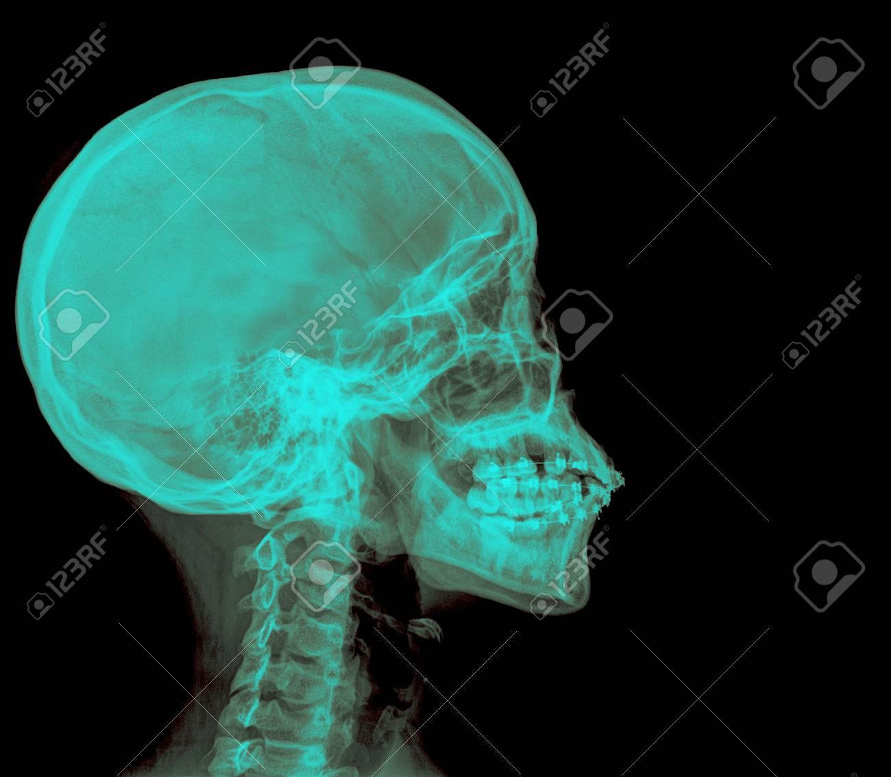 Foto Von Seite X-ray-Bild Des Menschlichen Schädel In Natürlichen ...