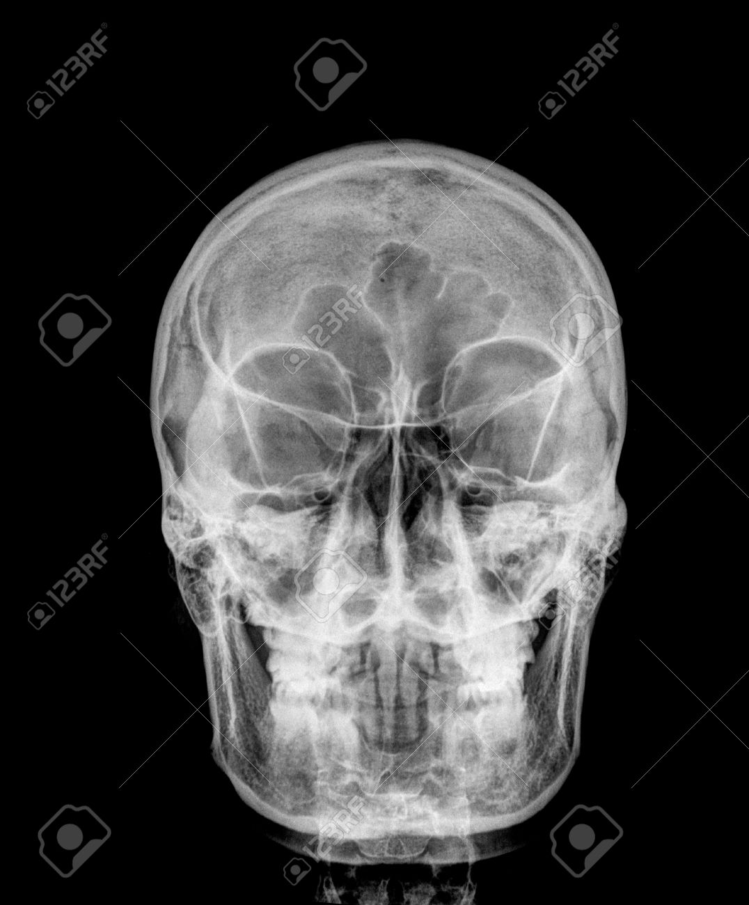 Front Face Skull X-ray Image Stock Photo, Picture And Royalty Free ...