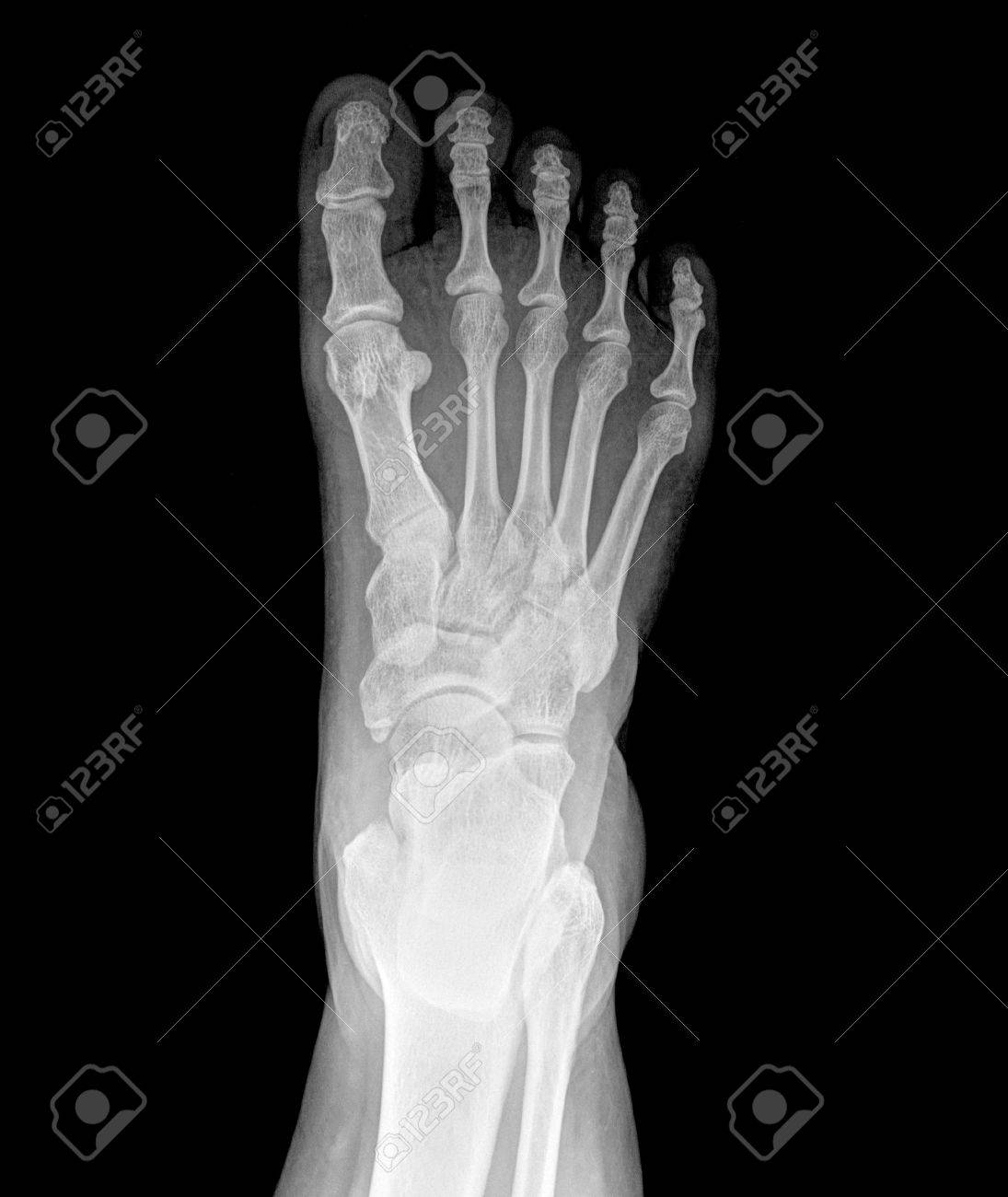 top view of humans feet bones under x-ray stock photo, picture and, Skeleton