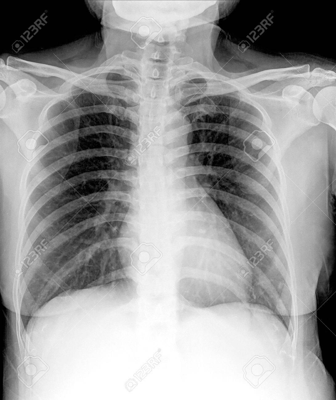 X-Ray Bild Der Menschlichen Brust Für Eine Medizinische Diagnose ...