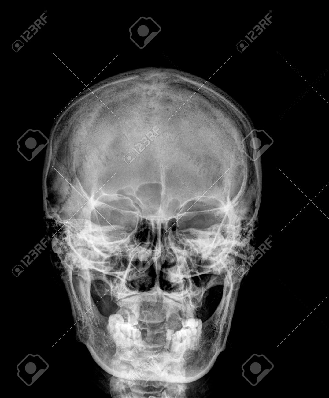 X-ray Normal Asian Skull (Old Man) Stock Photo, Picture And Royalty ...