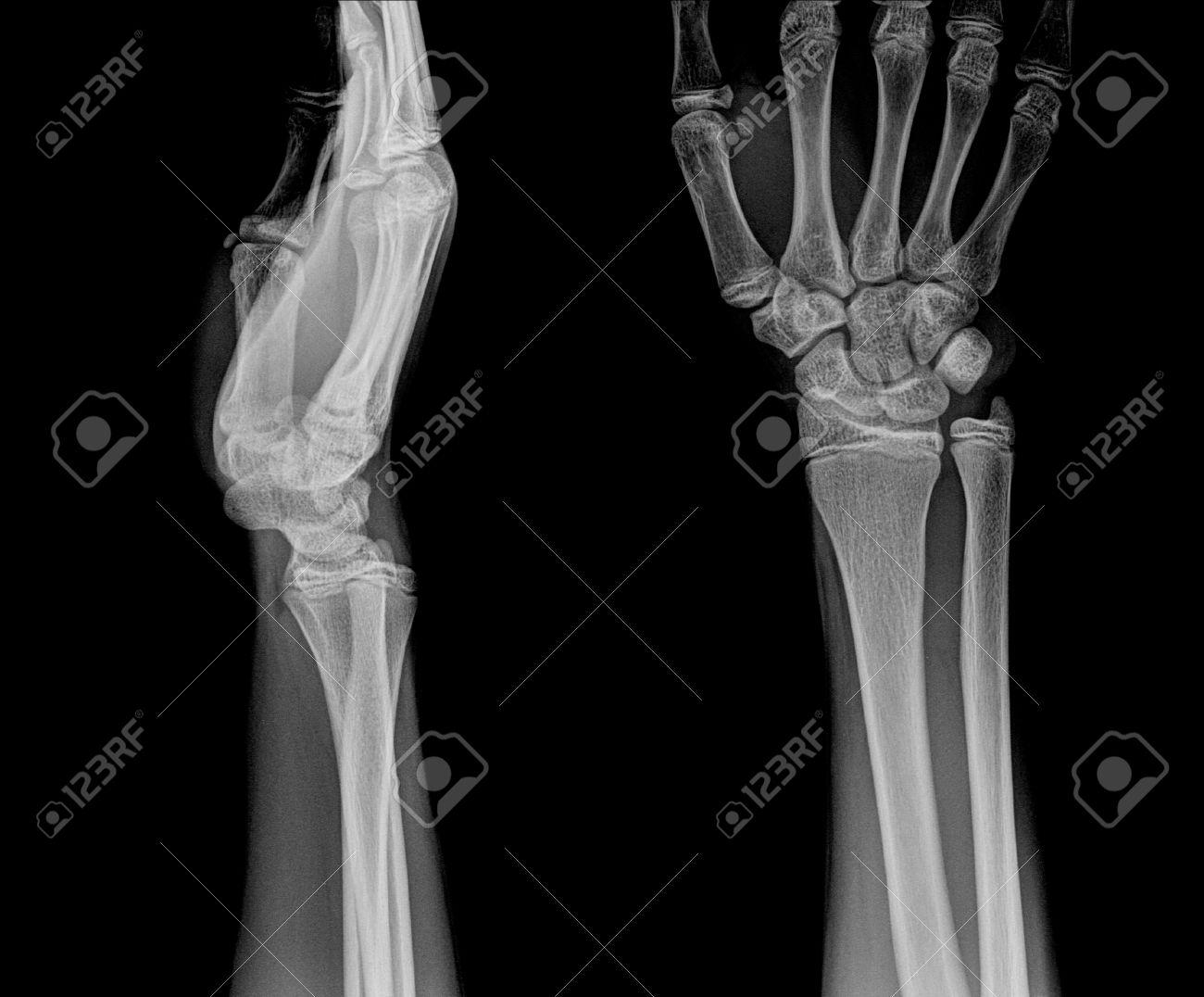 Film X-ray Wrist Show Fracture Distal Radius (forearm\'s Bone) Stock ...