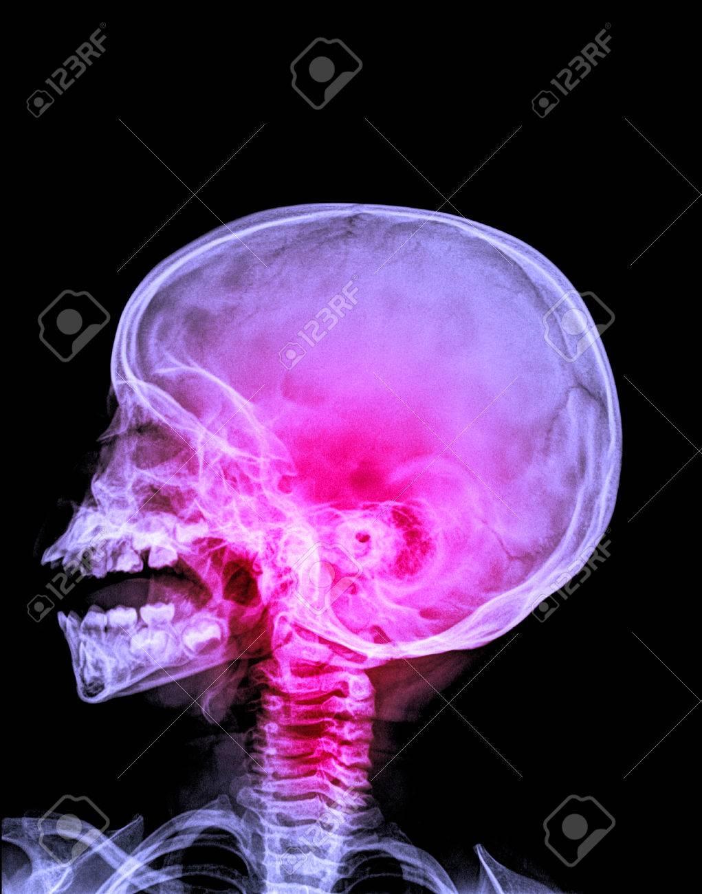 Detail Der Hals Und Kopf Bei Geöffnetem Mund Röntgenbild ...