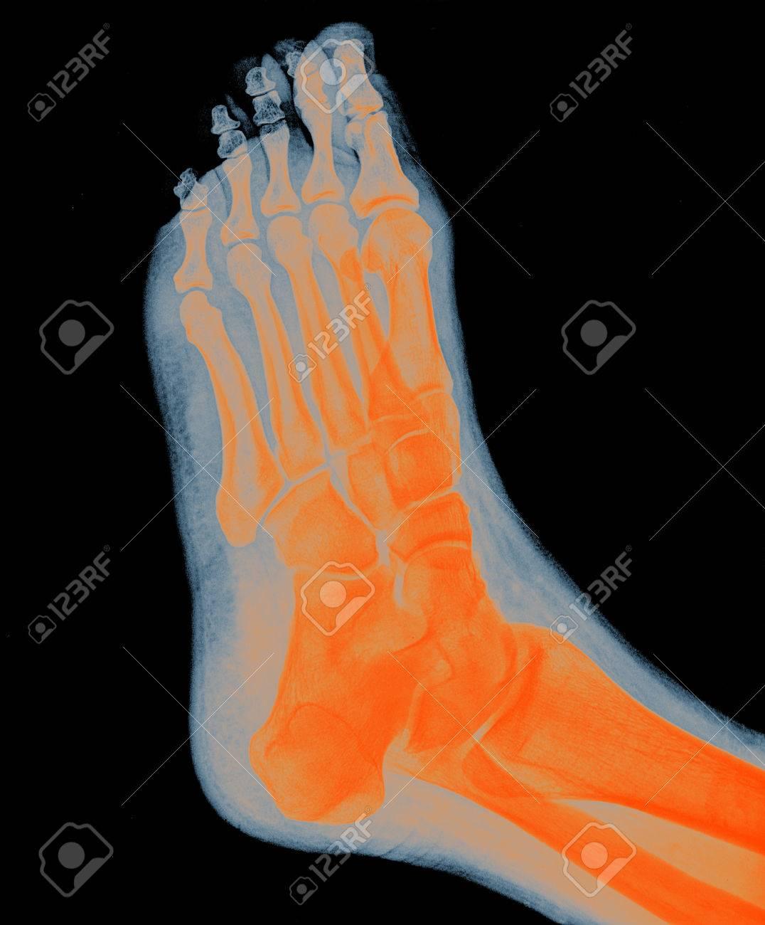 Fuß MRI - Röntgen RESONANC, Orange Farbe Lizenzfreie Fotos, Bilder ...