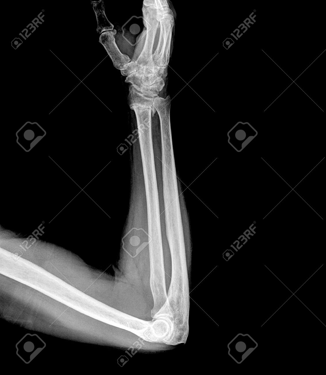 X Ray Image Of Broken Human Elbow Stock Photo, Picture And Royalty ...