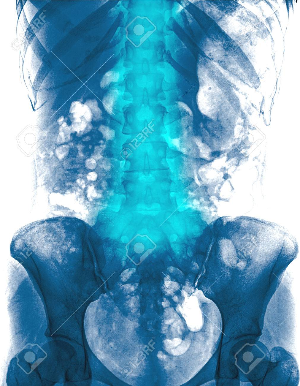 Lumbar Spine Of Woman And Inflammation At Lumbar Spine Low Stock