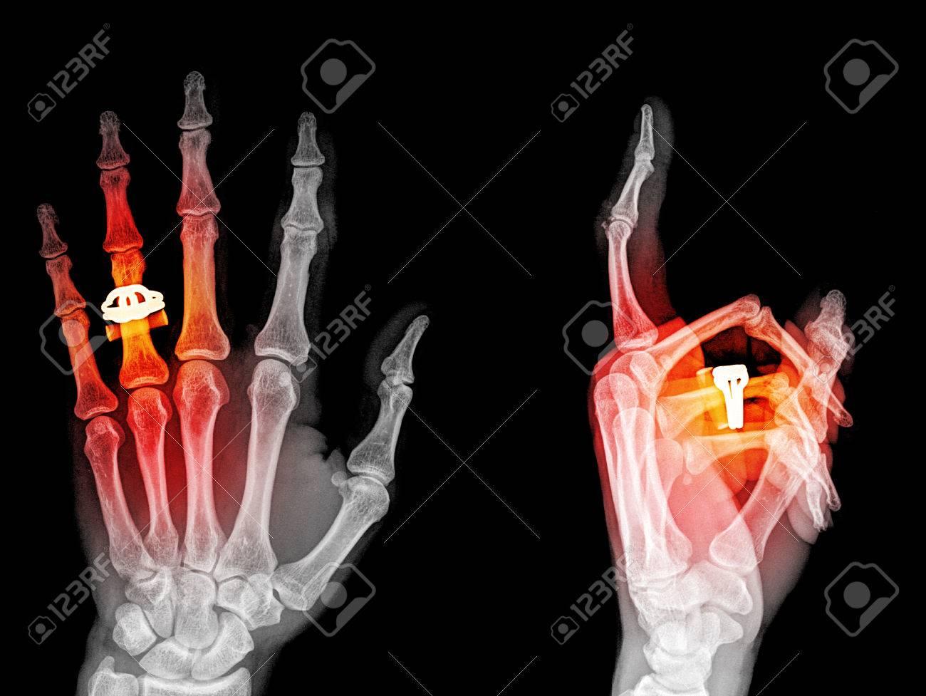 Hand Xray Anatomy Images - human body anatomy