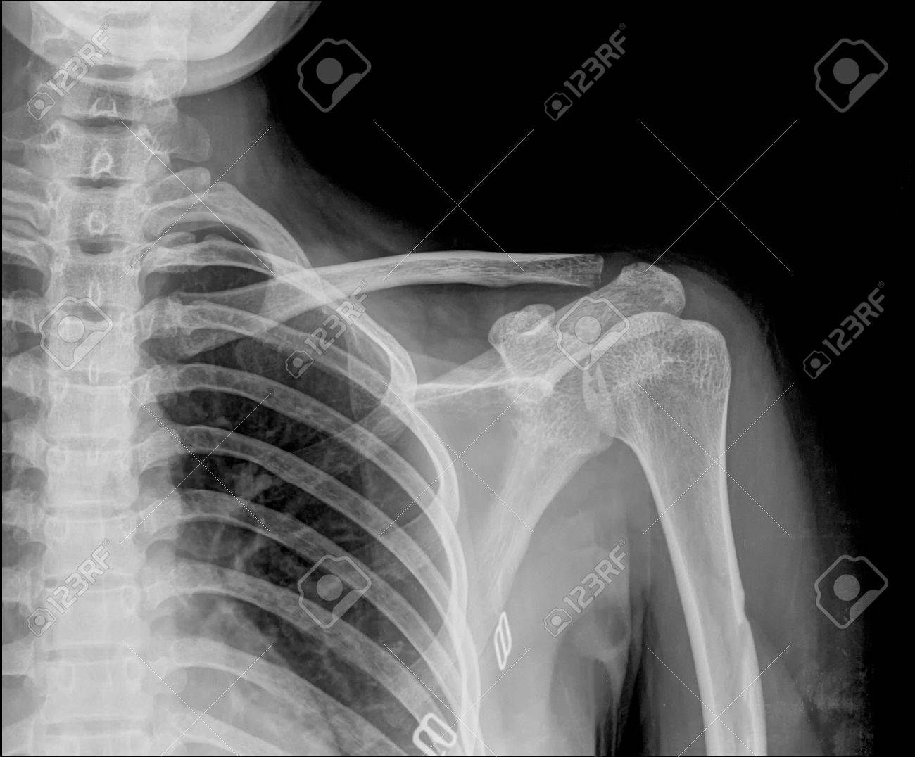 X-ray Of Human Shoulder Stock Photo, Picture And Royalty Free Image ...