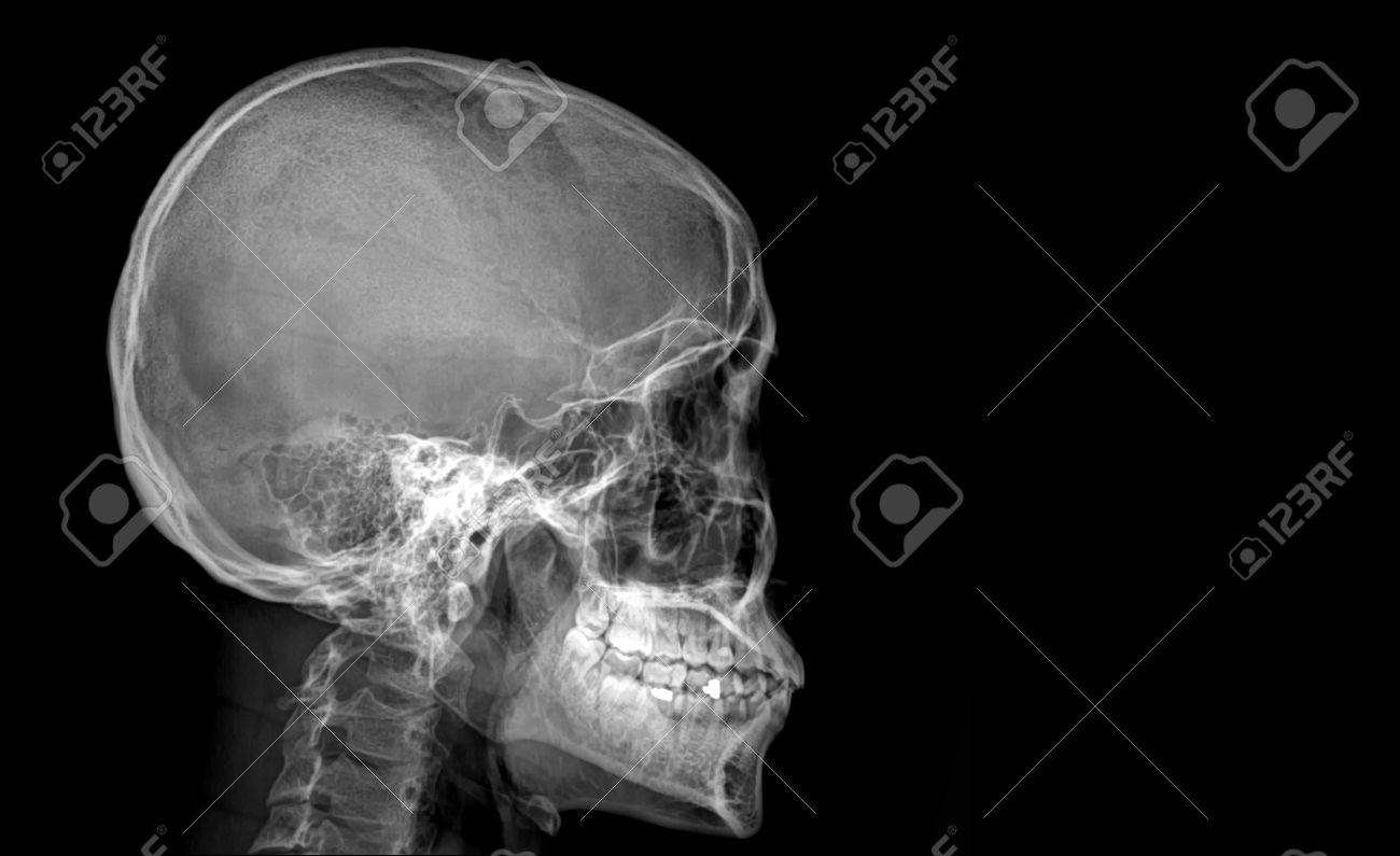Skull X Rays Image Sagital Plane Stock Photo Picture And Royalty