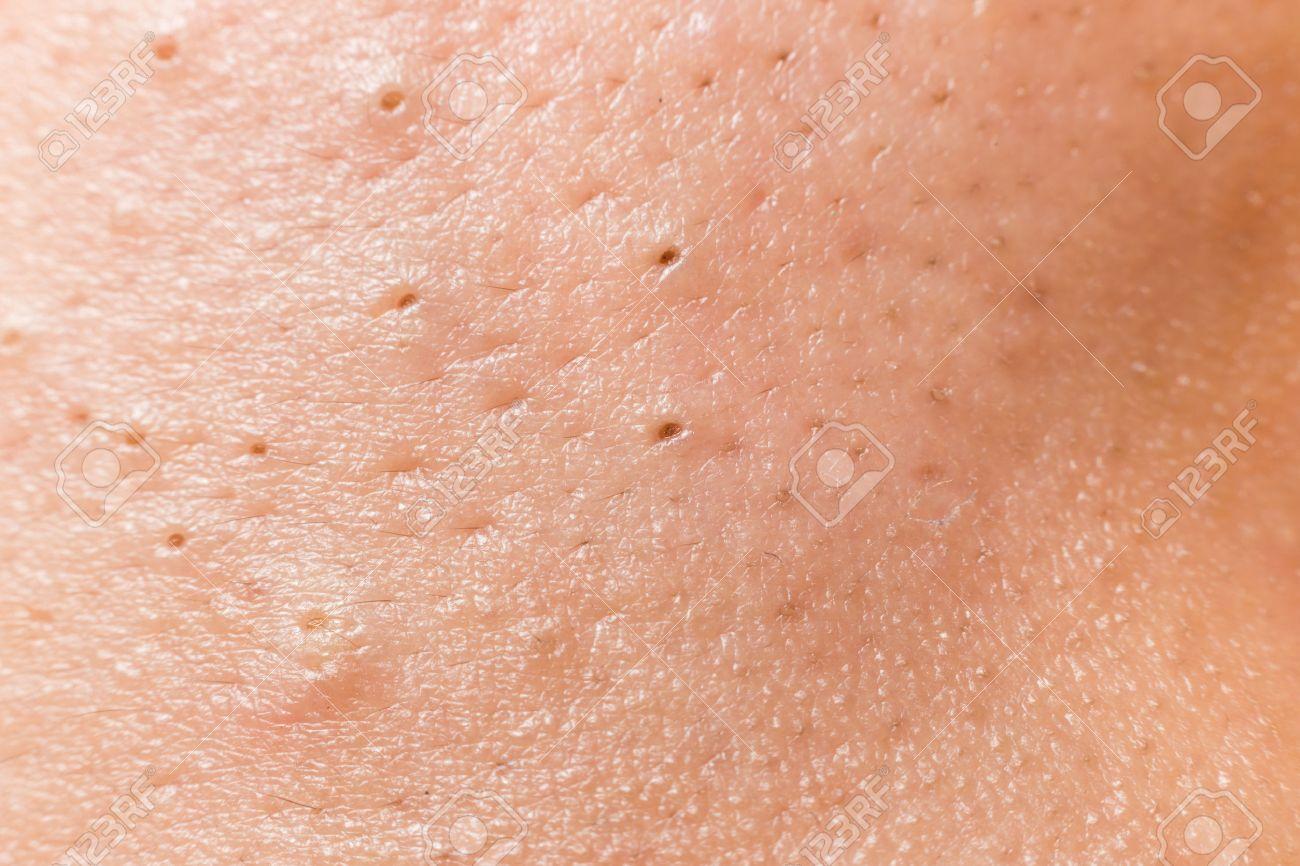 les points noirs sur le visage
