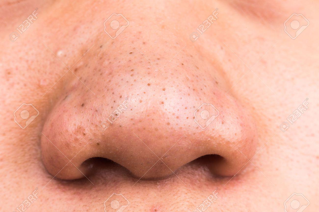 鼻 の 黒ずみ