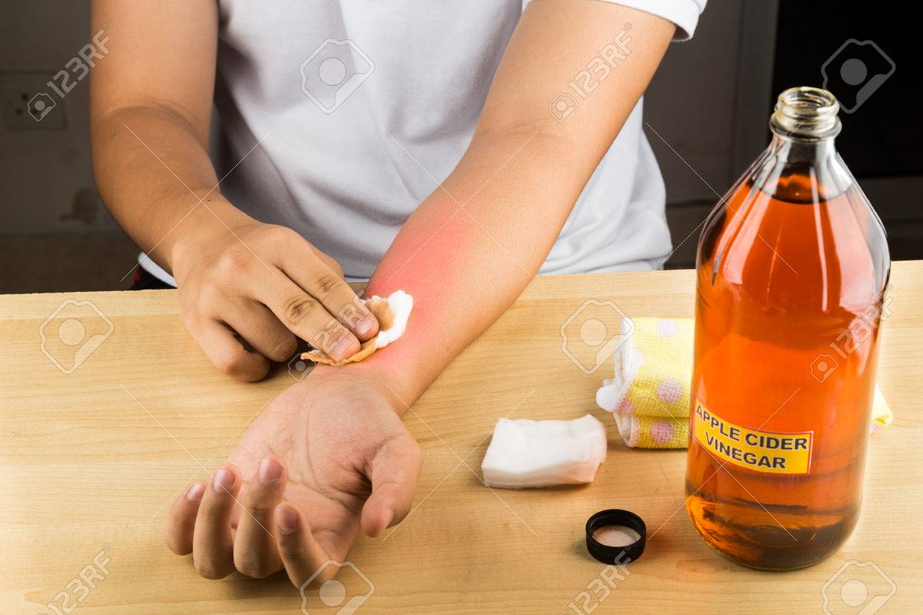 apple cider vinegar effective natural remedy for skin itch, fungal