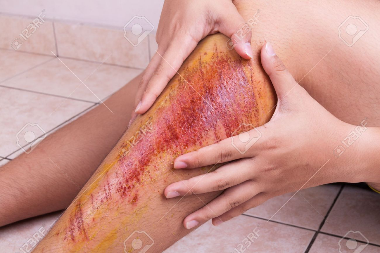hand embracing injured knee with painful abrasion scratches from