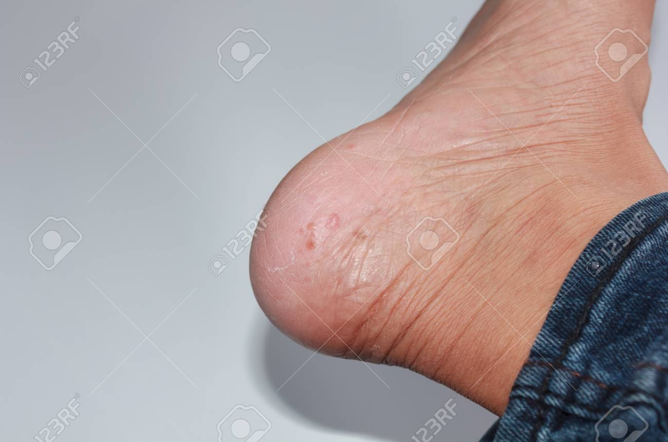 Foot Fungus On A White Background Stock Photo Picture And Royalty Free Image Image 80183226
