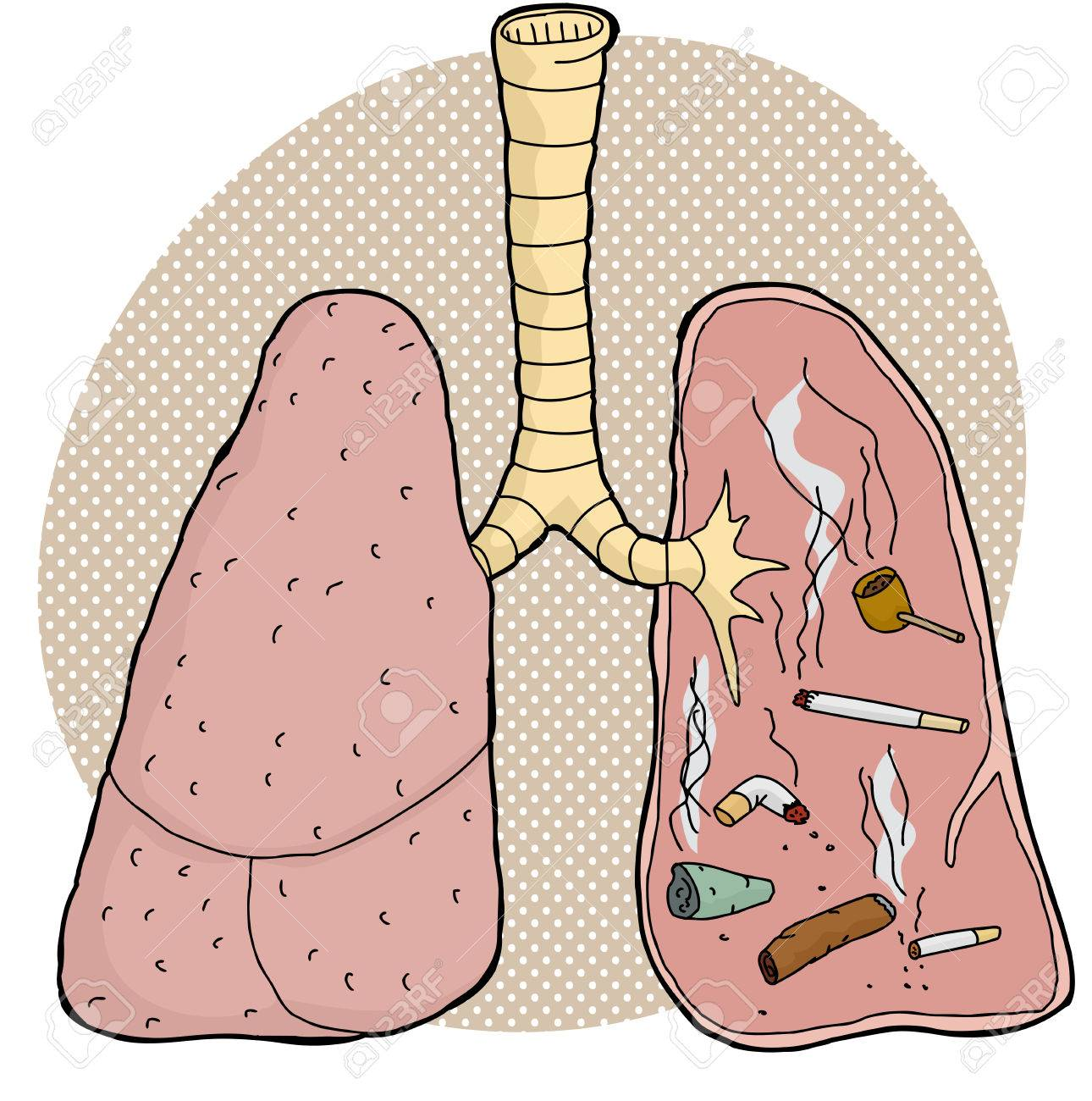 Verschiedene Süchtig Tabak Objekte Innerhalb Menschliche Lunge ...