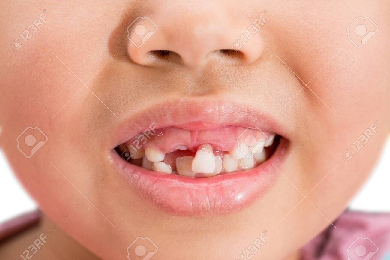 Milk teeth that are about to fall - 145977380