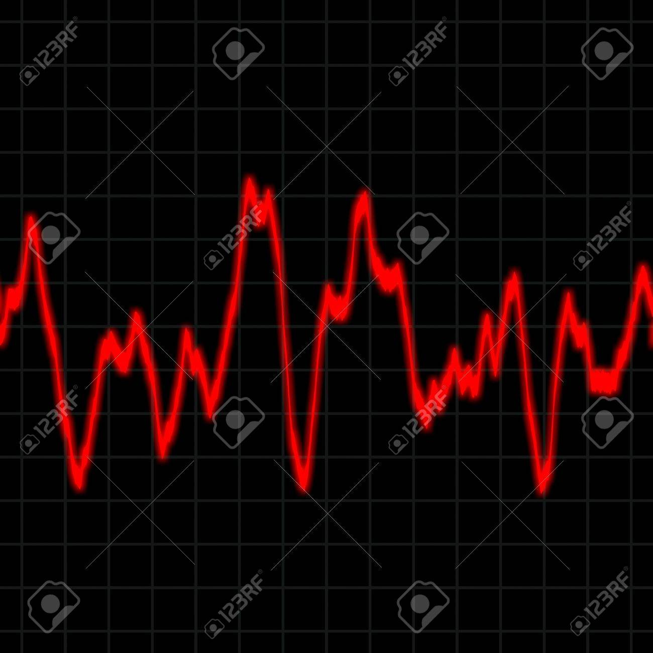 Illustration of the electrical activity of the human heart. Stock Photo - 3786121