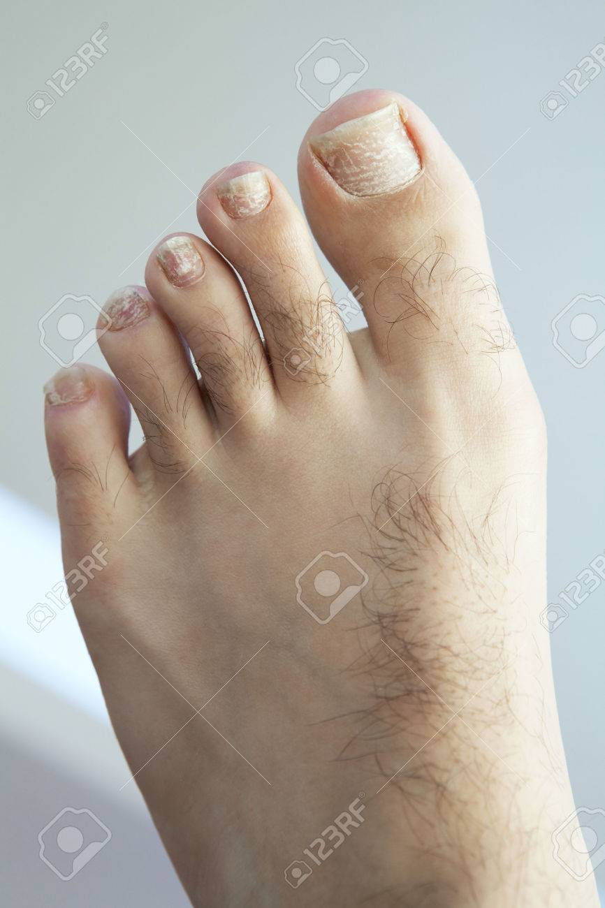 Closeup Of A Human Foot And Toes With Cracked Peeling Toe Nails Stock Photo