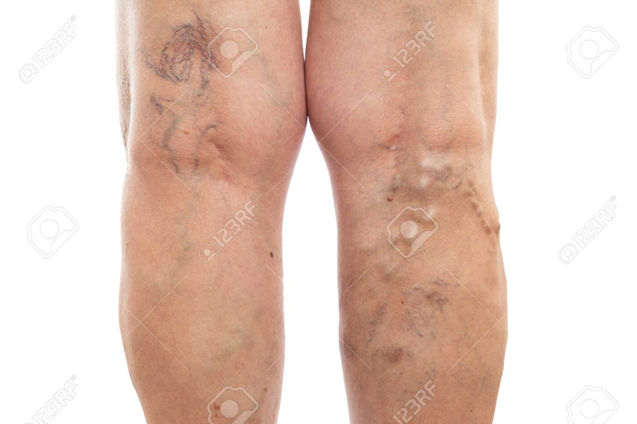 Female legs with swollen veins and varicose as vascular condition concept isolated on white studio background - 121561058