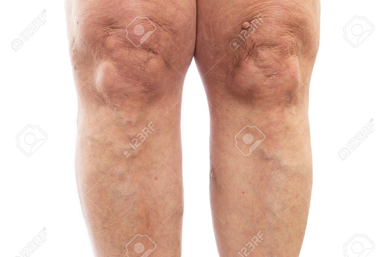 Closeup picture of female legs with varicose veins as medical problem concept isolated on white studio background - 121560975