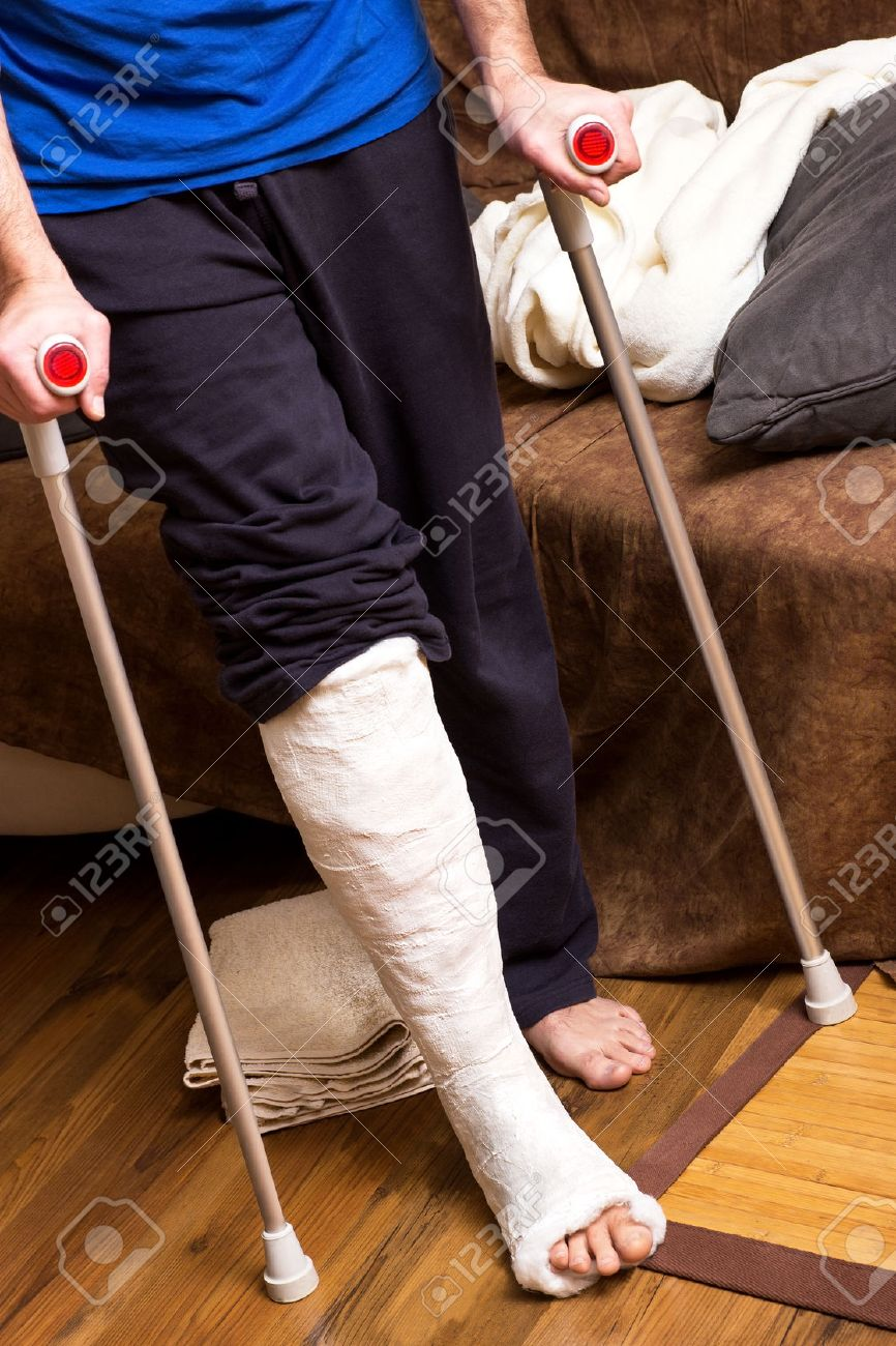 A man with broken foot tries to walk with crutches - 39534852