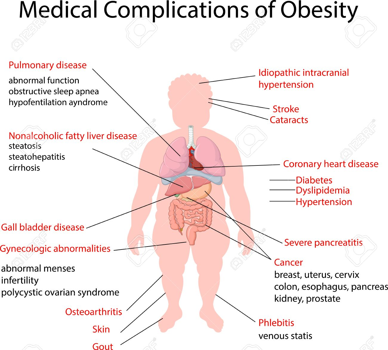 Vector illustration of Medical Complication of Obesity - 48410042