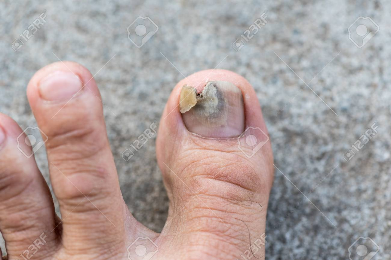 Close Up Image Of Man\'s Left Foot Suffering From Toenail Fungus ...