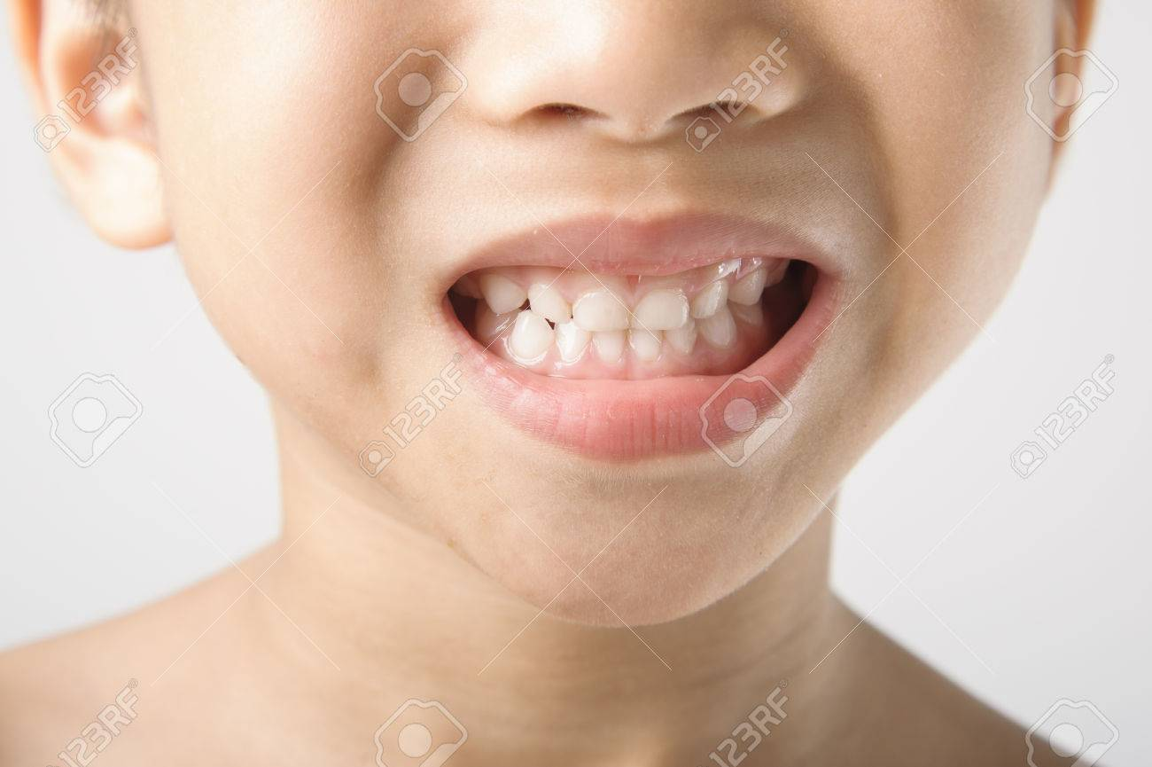 the boy open his mounth to show the clean teeth stock photo