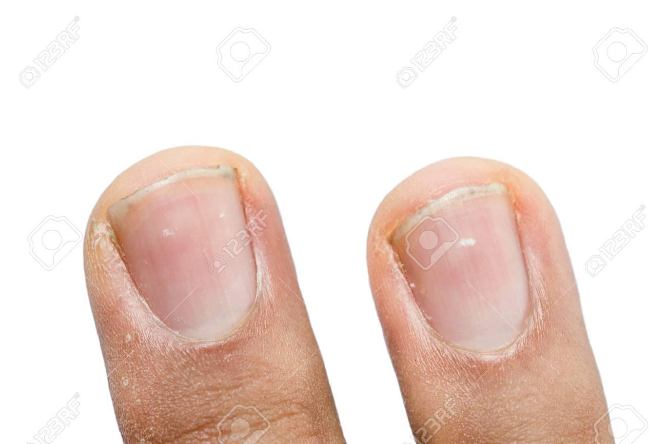 斑点 爪 に 白い