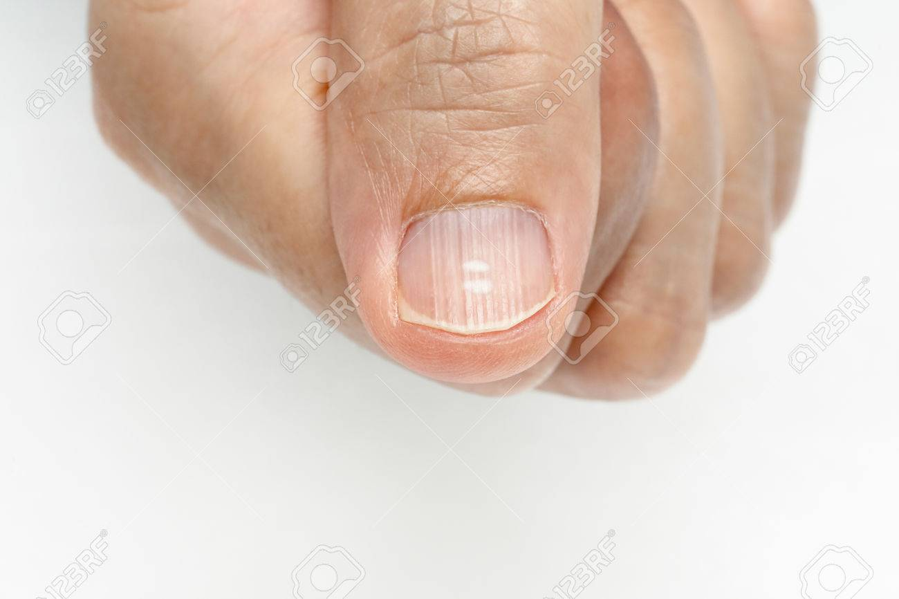 White Spots And Vertical Ridges On The Fingernails Symptoms ...