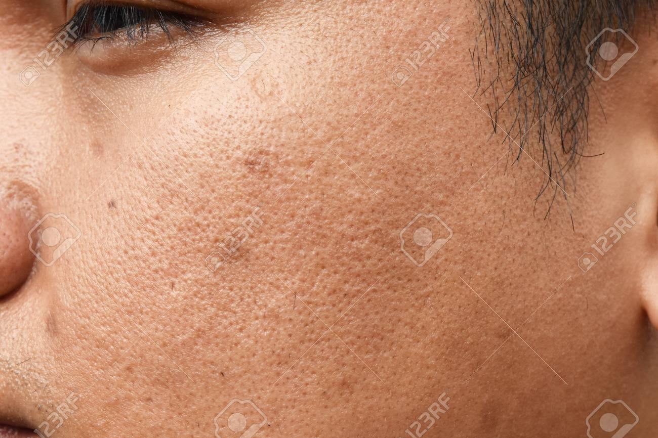 Pores And Oily On Surface Young Asian Man Face Skin Do Not Take.. Stock Photo, Picture And Royalty Free Image. Image 117763772.