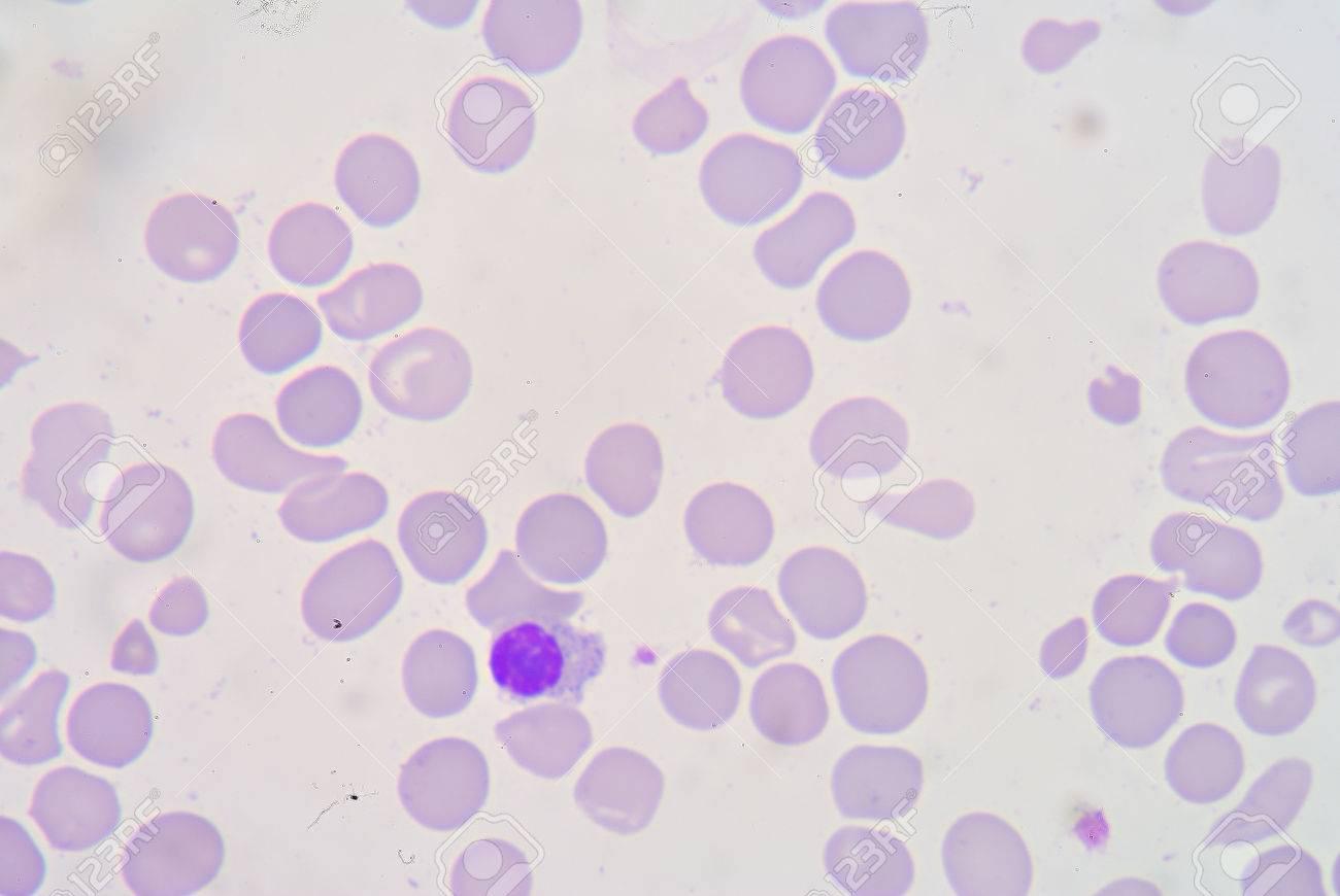 血液塗抹 β サラセミア (β サラ...