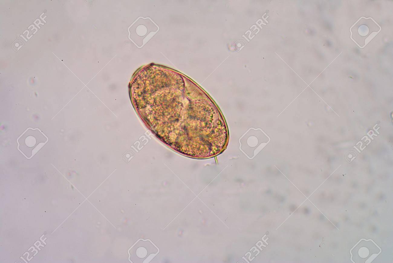 ウェステルマン肺吸虫、肺吸虫症...