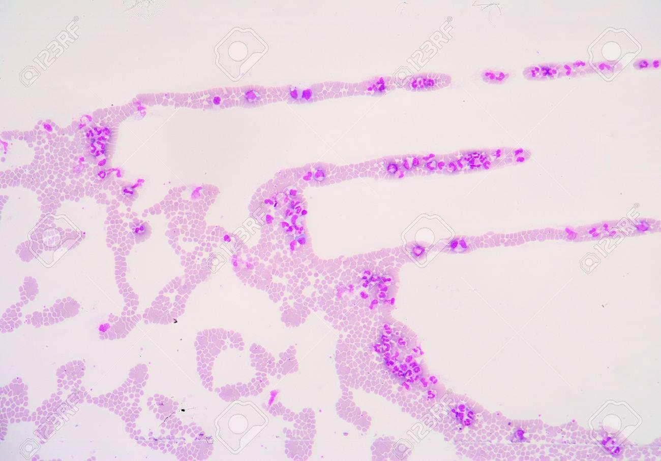 Микрограф